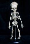 fetal  skeleton replica aged 73 150
