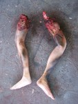 suicide bomber leg pair  06