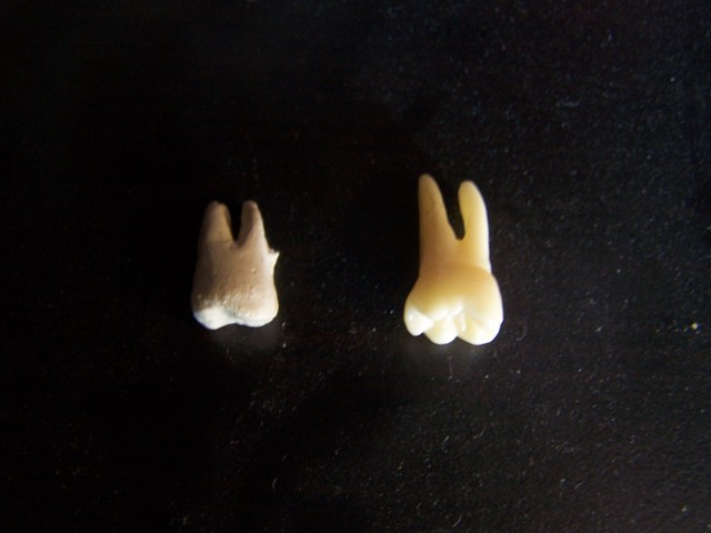 budget and dental teeth 26.JPG