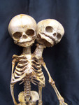 two headed fetal skeleton 47