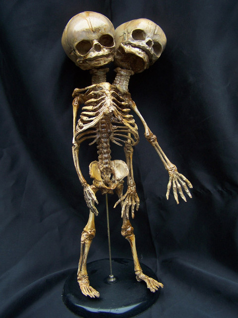 two headed fetal skeleton 52
