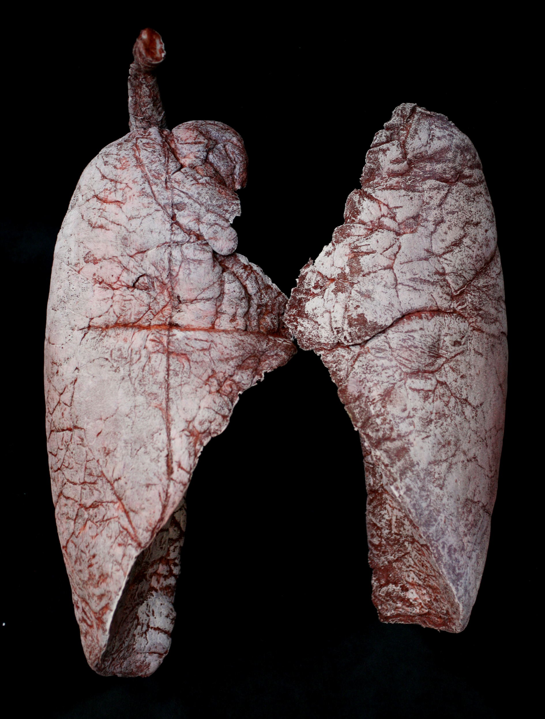 Gallery images and information: Real Human Lungs