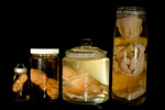 fetal development jars.jpg