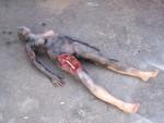 bomb wound jessica  4