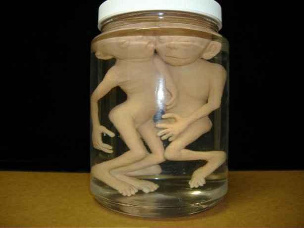 Mutated Fetuses - Siamese twin fetus fetus