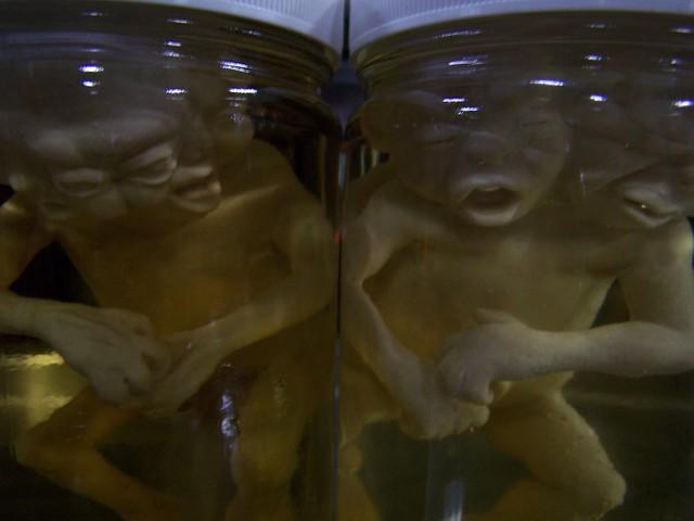 Mutated Fetuses - pickled punks 68.JPG