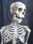 Child skeleton with cast Jessie skull 11.JPG
