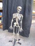 Child skeleton with cast Jessie skull 14.JPG