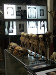 Fetal Skeletons and Neanderthal Skulls 82.JPG
