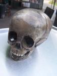 antique toddler skull  25