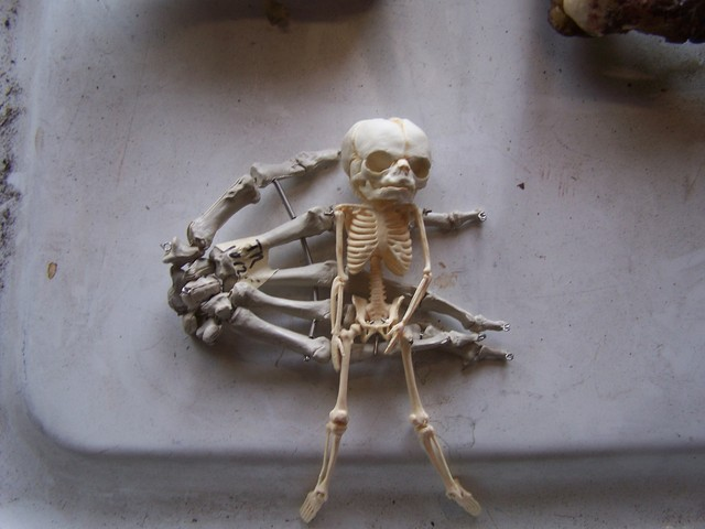 5 month fetal skeleton