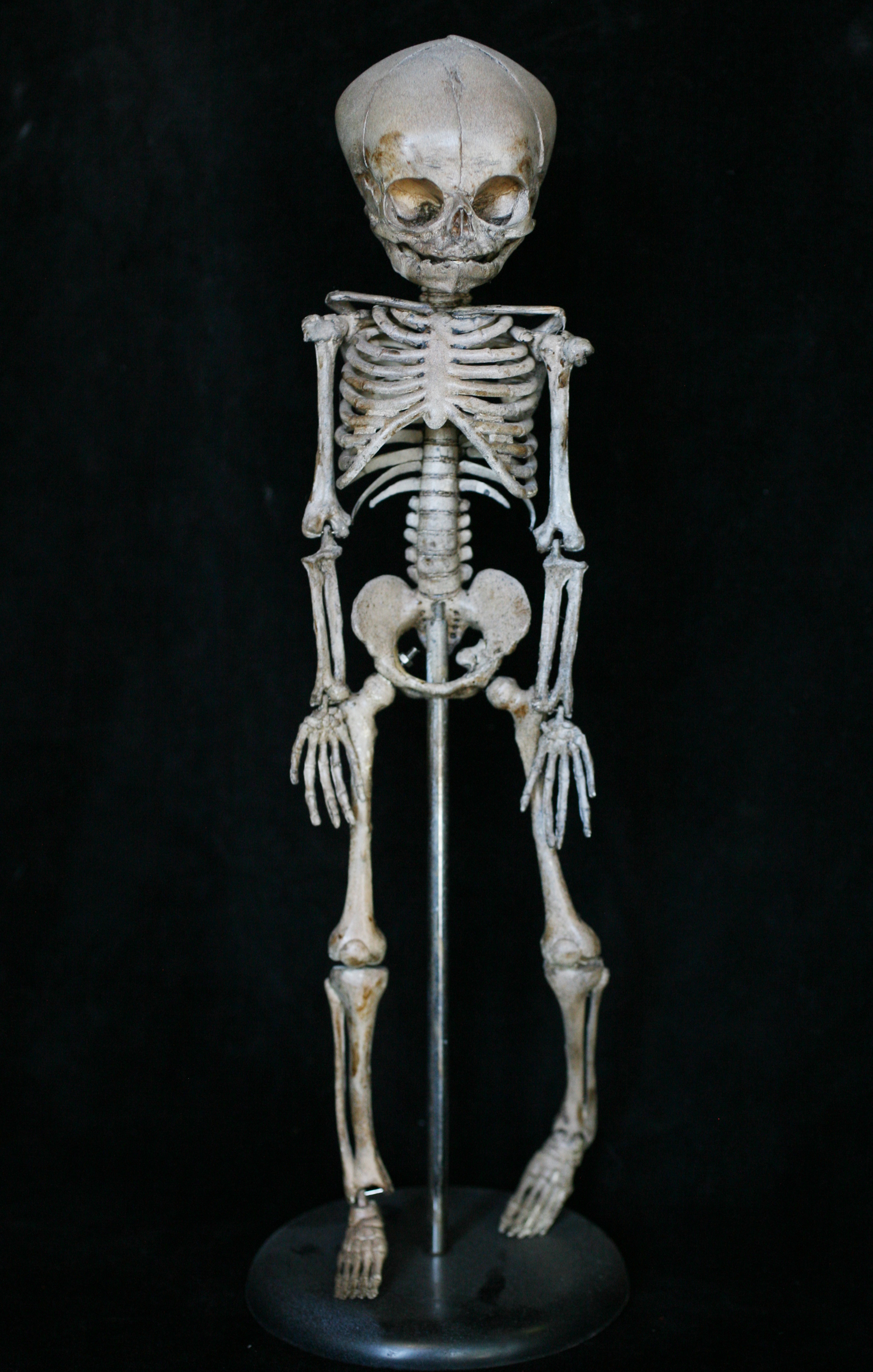 Bone Number