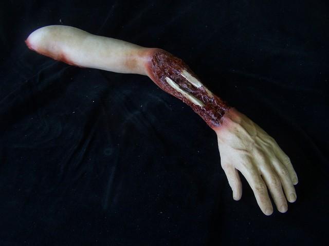 03 ripped wrist joe arm 36