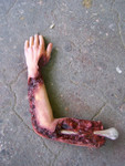 bloody arm with bone 05.JPG
