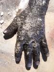 Hands - burnt hand 82