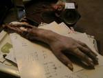 Hands - exposed bone hand
