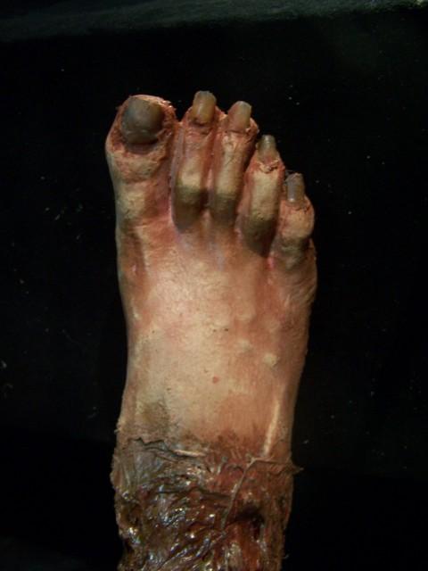 Feet - nasty foot 6.JPG