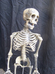 Child skeleton with cast Jessie skull 12.JPG