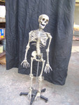 Child skeleton with cast Jessie skull 14.JPG