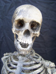Child skeleton with cast Jessie skull 15.JPG