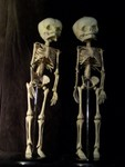 child skeletons - fetal and infant skeletons