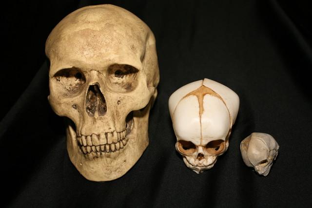 Adult Skull 18