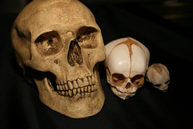 Adult Skull 2