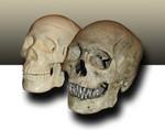 medical vs museum skull 1-2.jpg