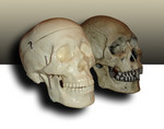 medical vs museum skull 2.jpg