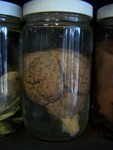 Brains - cows brain specimen jar.JPG