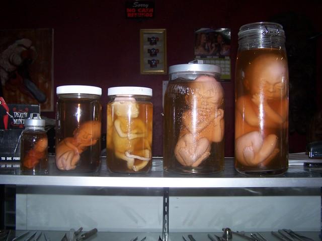 Human Fetuses - fetal development jars 4.JPG