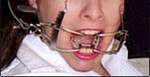 Speculums and Gags - Oral Speculum / mouth gag